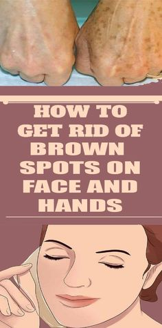 We all have brown spots, otherwise known as age spots, somewhere on our skin. - New Ideas Natural Beauty Tips, Health And Beauty Tips, Health Tips, Beauty Tricks, Beauty Secrets, Nutrition Tips, Healthy Nutrition, Beauty Ideas, Diy Beauty