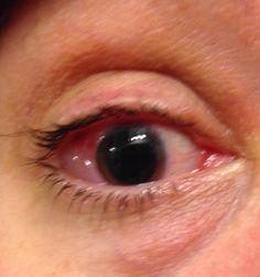 Pinterest  Presumed Ocular Histoplasmosis