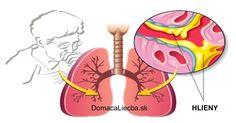Hlieny počas chrípky, nádchy či prechladnutia vedia neraz poriadne sťažiť dýchanie. Tu je spôsob, ako sa ich zbaviť takmer okamžite.