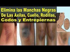 Elimina las Manchas Negras de las Axilas, Cuello, Rodillas, Codos y Entrepiernas - Salud y Algo Más - YouTube