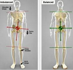 Hip Stability Exercises to prevent ITBS and Runner's Knee
