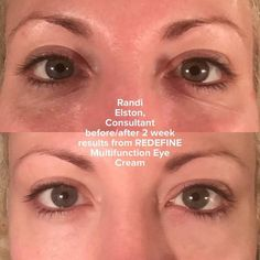 Our multifunction eye cream twice a day keeps those bags and dark under eye circles at bay!  You know you want to try some!  www.jmatak.myrandf.com