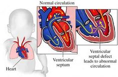 Experience best ventricular septal defect surgery in India by experienced specialist team of doctors with latest surgical techniques for complex surgery.