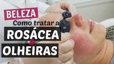 Tratamento para rosácea - Parte 1 INSCREVA-SE NO CANAL: https://www.youtube.com/user/coquetelfashion
