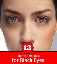 13 Home Remedies for Black Eyes