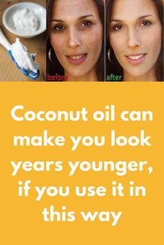 Coconut oil can make you look years younger, if you use it in this way Skin experts say that using Coconut oil can bring the youth back. Your skin health depends on the products you are using. Many brands are present on the market, and you probably have y Natural Hair Mask, Natural Hair Styles, Natural Beauty, Beauty Skin, Health And Beauty, Skin Tag, Les Rides, Beauty Hacks, Beauty Tips