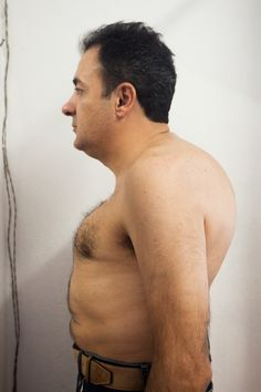 Euripides Costa lost 19 cm in height because of spinal fractures. Prostate Cancer, Change My Life, Real People, Costa, Men, Guys