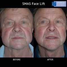 Face lift for male patient - please call 020 7486 6778 for enquiries #faceliftexperts #faceliftLondon #faceliftsurgery #plasticsurgeryexperts #facelift #SMASlift #SMASfacelift #faceliftbeforeandafter #faceliftbeforeandafterpictures #faceliftpatient #cosmeticsurgeryLondon #cosmeticsurgeonlondon #cosmeticsurgerypartners #malefacelift #faceliftformen Facelift Before And After, Facial Cosmetic Surgery, Body Surgery, Brow Lift, Skin Resurfacing, Liposuction, Body Contouring, Male Face, Plastic Surgery