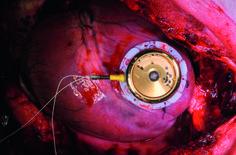 Bern Üniversitesi tarafından yapılan bir çalışma ile kalp hareketleri ile çalışan kalp pili yapıldı! Detaylar için yazımızı okuyunuz!