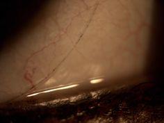 Lente de contato com depósito de maquiagem/ Contact lens with makeup pigment.