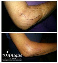 Today we want to share with you another set of before and after photos showing what a massive difference using Annique products can make.  A client had elbow-replacement surgery on 20 January 2016. Afterward she used Resque Circulation Gel to speed up her recovery, and also applied Miracle Tissue Oil to help along the healing process. The results are simply amazing!  Visit the Annique Health and Beauty website for more info.