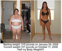 Post Op Gastric Bypass Media Item: Before and After Pic - DailyStrength