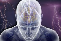 Types of Seizures and Seizure Symptoms: Grand Mal Seizure, Myoclonic Seizure, and More - WebMD