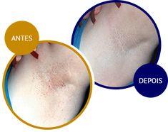 A Solução para Foliculite e Pelos Encravados - Tend Skin® Brasil Tend Skin, Ingrown Hairs
