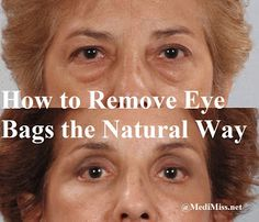 How to Remove Eye Bags the Natural Way ~ MediMiss