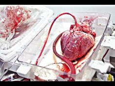 This machine can bring a human heart back from the dead