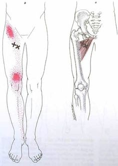 Adductor Longus--brevis Trigger Point Diagram