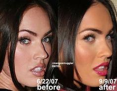 Megan Fox nose job                                                                                                                                                     Mehr