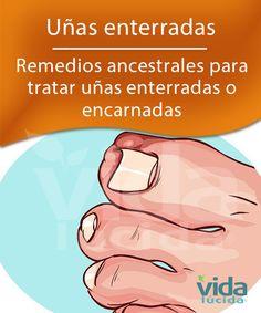 Tratamiento natural para las uñas enterradas.
