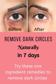 One ingredient remedies to remove dark circles naturally in 7 days. Try this remedy to fix the dark circles. Dark Spots Under Eyes, Dark Circles Around Eyes, Dark Circles Makeup, Reduce Dark Circles, Best Dark Spot Corrector, Dark Circle Remedies, Circle Face, Dark Circles Treatment, Dark Eyes
