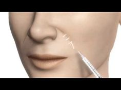 Fillers - Plastic Surgery Clinic in Cyprus (Limassol-Nicosia)