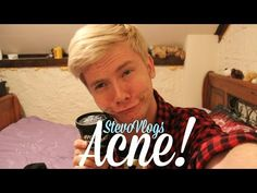 ▶ How I Deal With Acne! | StevoVlogs - YouTube