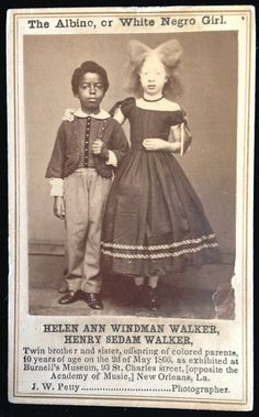 Helen and Henry Walker, Twin siblings, the female child being Albino seen here in promotional pitchcard for Burnell's Museum in Louisiana 1866.