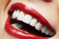 The Best Tips to Help You Prevent Tooth Decay
