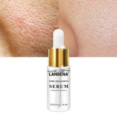 # Make-up-samml # # Serum # Mitesser Back Acne Treatment, Acne Spots, Skin Spots, Shrink Pores, Remove Acne, Beauty Care, Beauty Skin, Diy Beauty, Travel Accessories