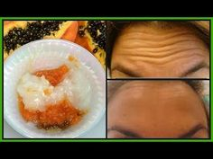 HOW TO GET RID OF FOREHEAD, HANDS + UNDER EYES WRINKLES, LOOK YEARS YOUNGER NATURALLY |Khichi Beauty - YouTube