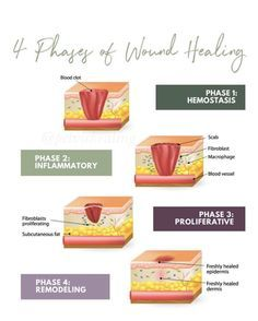 4 Stages of Wound Healing Wounds Nursing, Rectus Abdominis Muscle, Physical Therapy School, Nursing Theory, Fundamentals Of Nursing, Nursing School Notes, Wound Care, Nursing Tips, Wound Healing