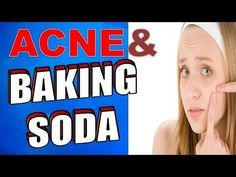 How to Treat Acne, Dark Circles & Spots using Baking Soda Pimples are mostly a sign of acne. They can also be caused by the accumulation of sebum, sweat and dirt in sweat pores of the skin. As bacteria invade the pores, infections begin to show and pimple Natural Acne Remedies, Home Remedies For Acne, Natural Cures, Skin Care Regimen, Skin Care Tips, How To Get Rid Of Pimples, Acne Breakout, Acne Skin, Sodas