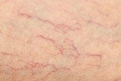 Oplossingen voor spinnenkoppen op je benen - Gezonder Leven