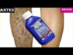 Varicose Vein Remedy, Varicose Veins, Crawling In My Skin, Beauty Secrets, Beauty Hacks, Face E, Tips Belleza, Health And Fitness Tips, Remover