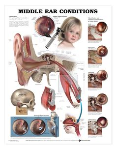 middle ear conditions such as pressure or infection which can be secondary issues related to Chiari in some people (me!).