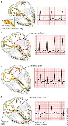 Common Types of Supraventricular Tachycardia: Diagnosis and Management - American Family Physician
