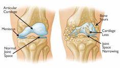 Αρθρίτιδα γόνατος ή γονάρθρωση είναι μία από τις πιο κοινές ασθένειες των αρθρώσεων που εμφανίζονται από το κατεστραμμένο χόνδρο του γονά...