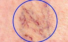 Некрасивые сосудистые «звездочки» на ногах доставляют многим женщинам массу неудобств. Неэстетичность внешнего вида вздувшихся вен на ногах – это лишь верхушка айсберга. На самом деле – это серьезное заболевание, нуждающееся в своевременном диагностировании, правильном лечении, выполнении всех рекомендаций врача. В