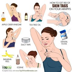 How to Get Rid of Skin Tags on ArmpitsSkin tags, medically known as acrochordons, are unsightly skin growths that can appear on the armpits along with other areas of the body like the neck. Skin Tag On Eyelid, Skin Tags On Face, Beauty Tips For Skin, Skin Care Tips, Beauty Tricks, Skin Tips, Remove Skin Tags Naturally, Clear Skin Overnight, Skin Tags Home Remedies