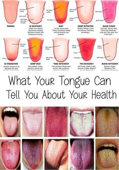 Every person's tongue is unique, with distinct characteristics that reflect their inner health. Ever been to a TCM (Traditional Chinese Medicine) doctor or an acupuncturist… Healthy Tongue, Tongue Health, Health And Wellness, Health Tips, Health Fitness, Health And Beauty Tips, Gut Health, Wellness Tips, Ayurveda