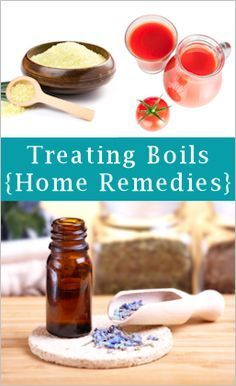 How To Treat, Soothe & Bring Boils To A Head....great suggestions except for the old wives remedies