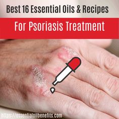 Psoriasis is a type of auto-immune disease with inflammatory symptoms resulting in skin disorders that some believe is hereditary. The outcome is raised patches of pink dead skin, which can be extremely painful, though the