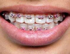 Braces! Soon enough!