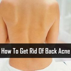 How To Get Rid Of Back Acne http://www.usehomeremedies.com/wiki/how-to-get-rid-of-back-acne