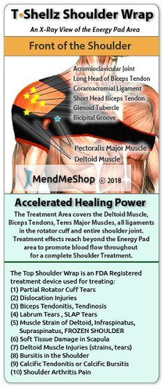 Shoulder TShellz Wrap for Rotator Cuff Tendinitis Shoulder Impingement Syndrome, Shoulder Tendonitis, Bicep Tendonitis, Shoulder Injuries, Acromioclavicular Joint, Tendon Tear, Shoulder Surgery, Shoulder Rehab, Sore Shoulder