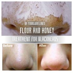 "You need: – 1 tablespoon of flour – 1 teaspoon of warm water – 1/2 teaspoon of honey Mix the ingredients and add more water if needed. This mixture should be sticky. Take a square post-it and cut it into 3 strips. Apply the ""glue"" on one side of the strip, then stick the tape to remove blackheads on the problem area. After 10 minutes, the ""glue"" should be dry. It is time to remove"