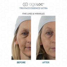 what's the best things for wrinkles & wrinkle remedies Face Lines, Long Lasting Makeup, Cosmetic Items, Waterproof Makeup, Skin Firming, Beauty Shop, Beauty Care, Lip Colors, Healthy Skin