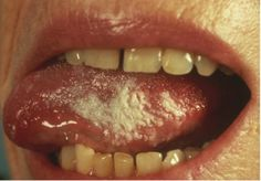 Oral Leukoplakia Medical School, Poster, Med School, Posters, Billboard
