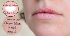 L'herpes labiale ti tormenta ogni volta? scopriamo insieme come curarlo…