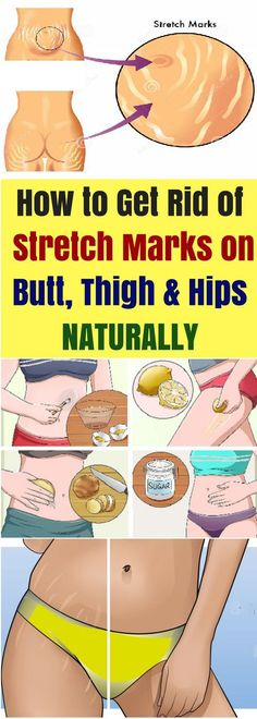 How To Get Rid Of Stretch Marks On Butt, Thigh & Hips Naturally!!! - All What You Need Is Here